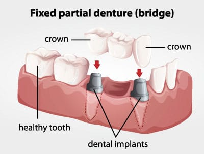 Fixed Partial Denture (Bridge) Diagram