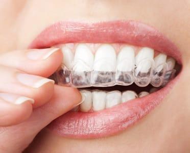 Healthy Smile Using Invisalign