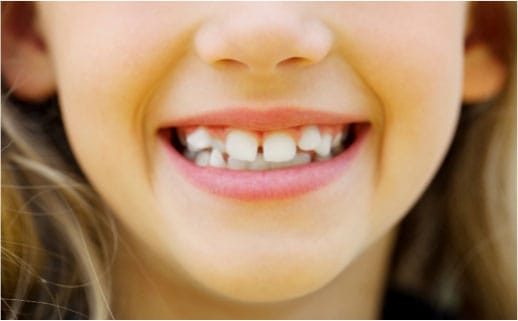Child smiling who could benefit from orthodontic treatment.