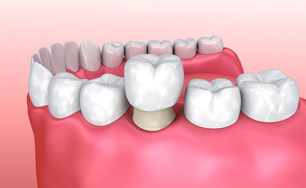 Diagram of a dental crown that are more commonly known as