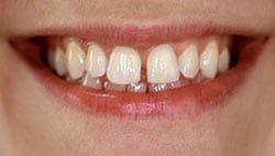Photo of a smile with gaps between their teeth (diastema).