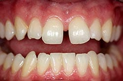 Photo of a smile with large gap between their teeth (diastema).